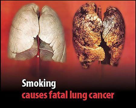 Ung thư phổi và triệu chứng của bệnh