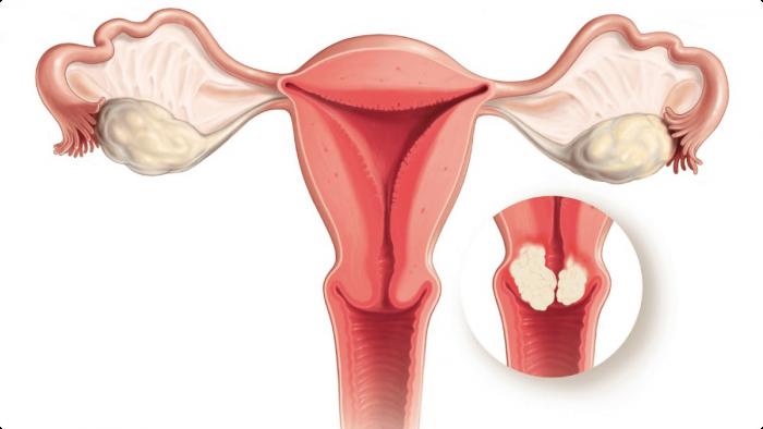 ung thư cổ tử cung CIN 1 1