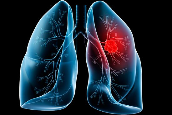 ung thư phổi có di truyền từ bố sang con không