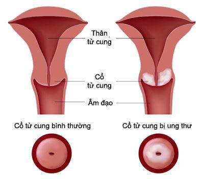 Ung thư cổ tử cung sống được bao lâu?