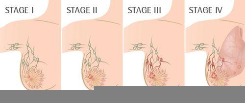 Ung thư giai đoạn I có cần hóa trị không?