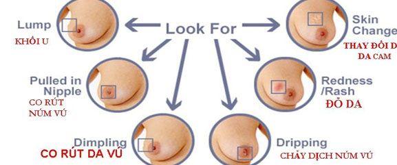 Ung thư vú biểu hiện như thế nào?