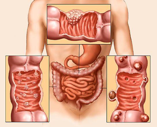 Ung thư đại tràng giai đoạn I