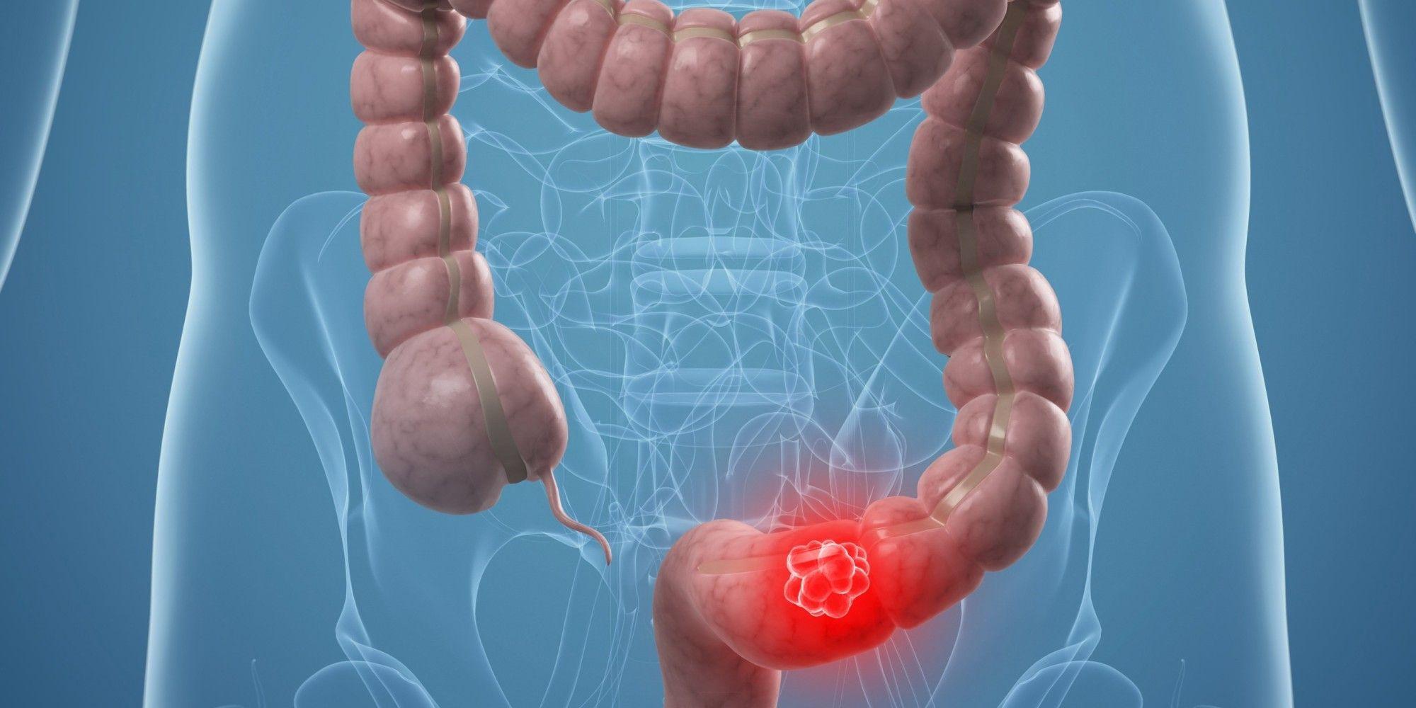 Ung thư đại tràng giai đoạn II sống được bao lâu