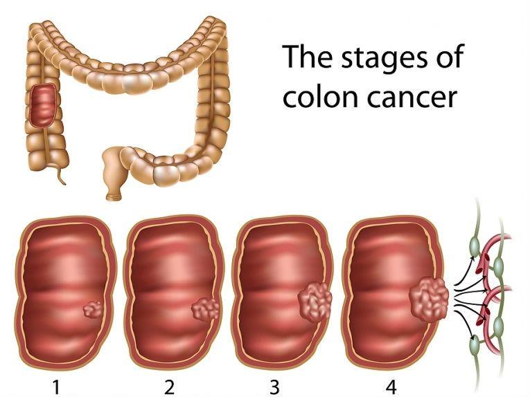 Ung thư đại tràng có mấy giai đoạn