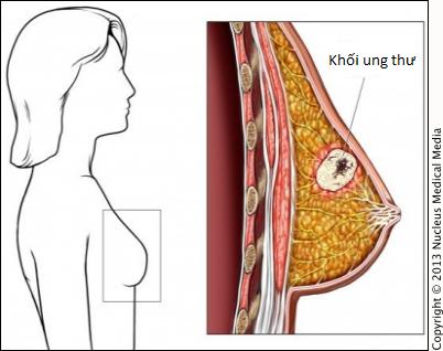 Ung thư vú ở phụ nữ trung niên