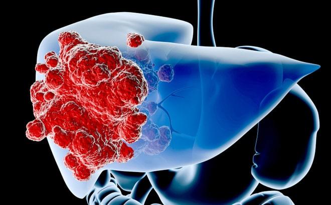 Ung thư gan có di truyền không