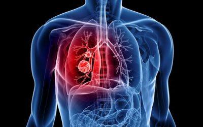 Tại sao không hút thuốc vẫn bị ung thư phổi?