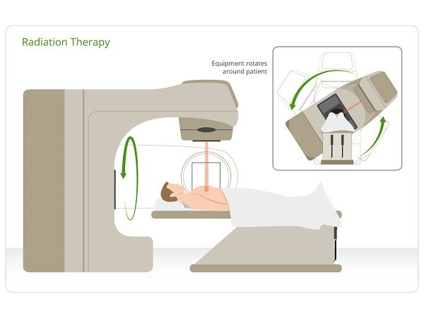 radiation_therapy_procedure