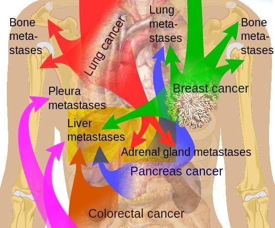 ung thư di căn gan