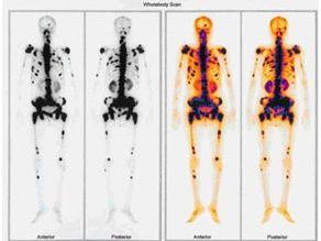 Trên 90% bệnh nhân ung thư vú giai đoạn di căn có di căn xương.