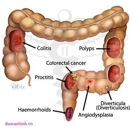 Trẻ thường bị chẩn đoán sai khi mắc polyp đại trực tràng