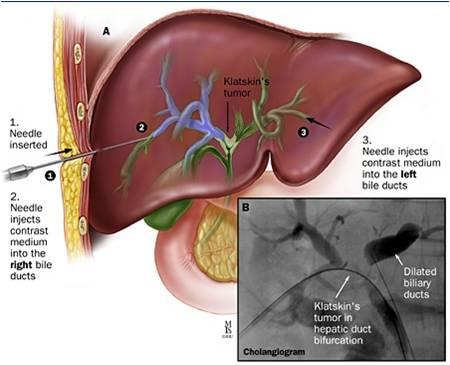 Sỏi mật là một trong những nguyên nhân gây ung thư đường mật