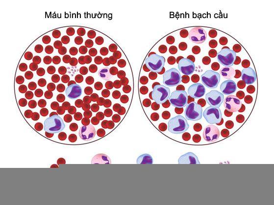 Bệnh bạch cầu tủy xương mạn tính tiến triển là do sự đột biến gene của các tế bào máu