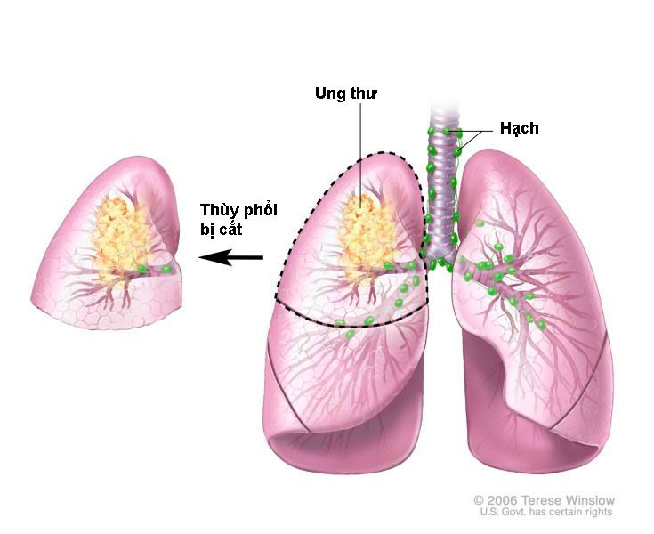 Ung thư phổi không còn là nỗi ám ảnh đối với người hút thuốc lá