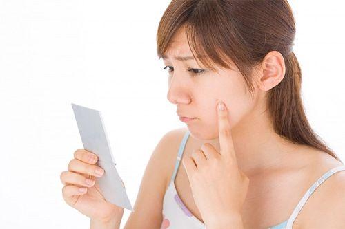 Một số bệnh nhân có thể bị nổi mụn ở da khi điều trị hocmon