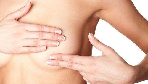 Nổi cục u bất thường ở vú cảnh báo dấu hiệu ung thư vú