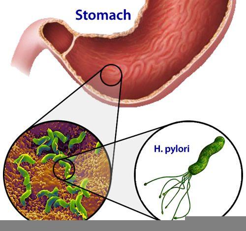 Vi khuẩn HP gây nhiều bệnh về dạ dày trong đó có ung thư dạ dày.