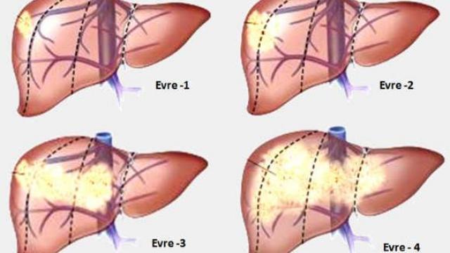 Đánh giá giai đoạn của ung thư gan giúp đưa ra phương pháp điều trị phù hợp nhất.