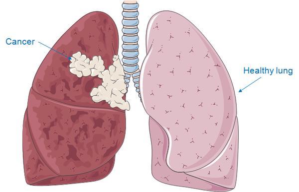 Ung thư phổi biểu mô tuyến là gì