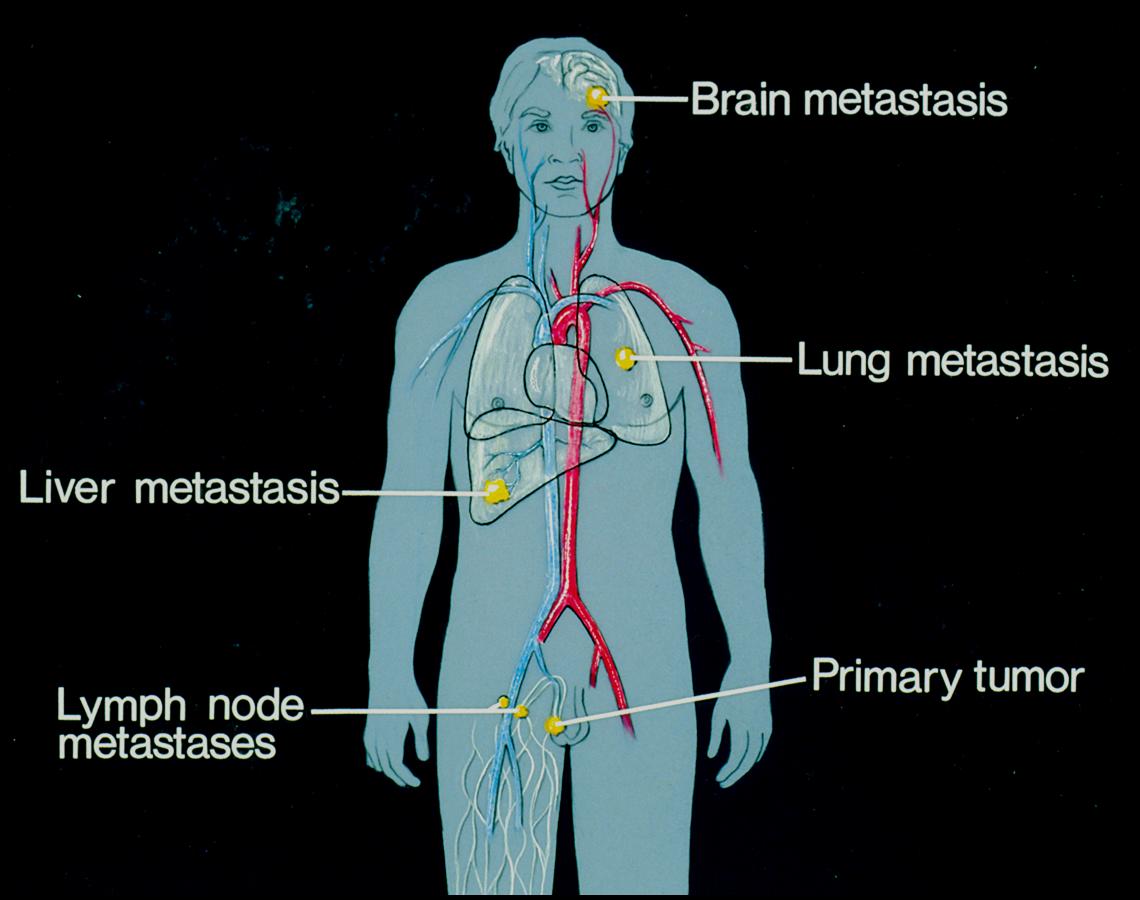 Ung thư gan thứ phát là ung thư lây lan đến gan từ một phần khác của cơ thể.