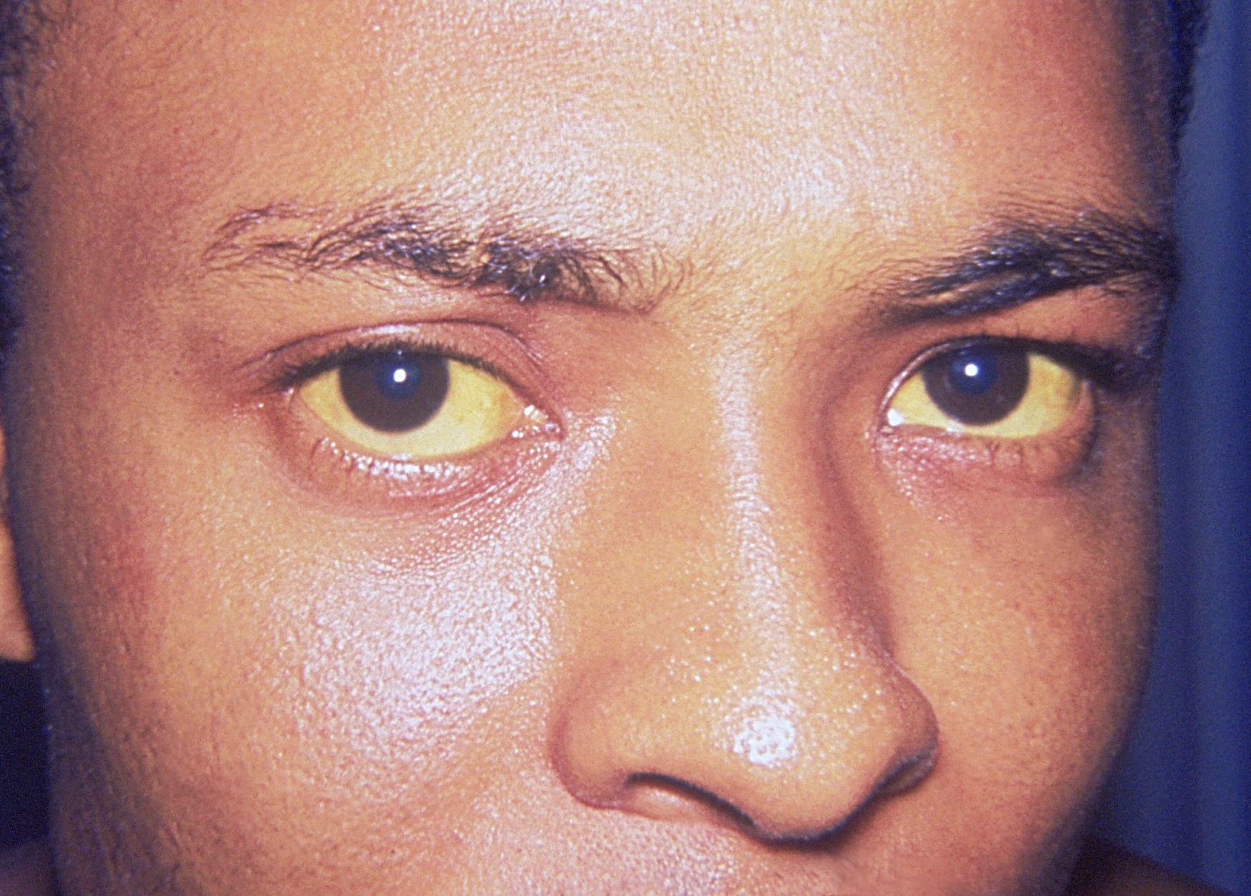 Vàng da là một trong những triệu chứng của ung thư gan thứ phát.