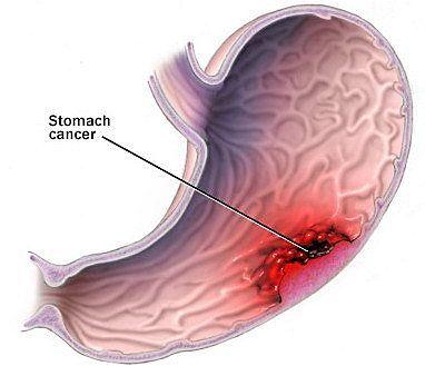 U mô đệm đường tiêu hóa xuất hiện chủ yếu trong thành dạ dày