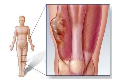 Sarcoma cơ vân ở trẻ có thể xẩy ra ở bất cứ bộ phận nào, nhất là ở các chi