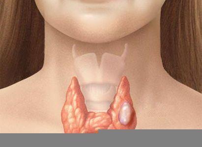 Nổi cục u bất thường ở cổ có thể là dấu hiệu ung thư tuyến giáp