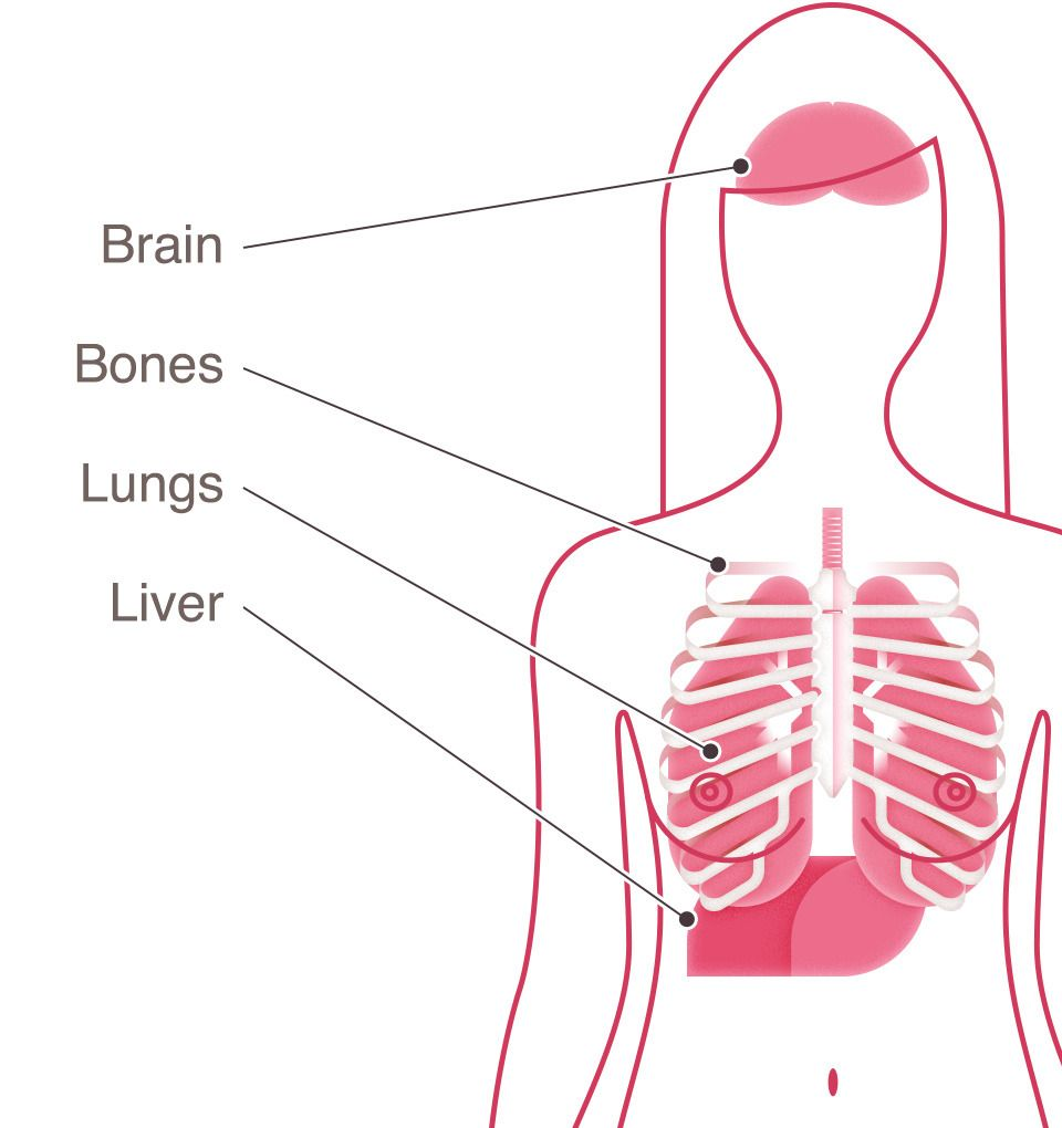 Ung thư gan thứ phát là ung thư lây lan từ các bộ phận khác trong cơ thể đến gan.