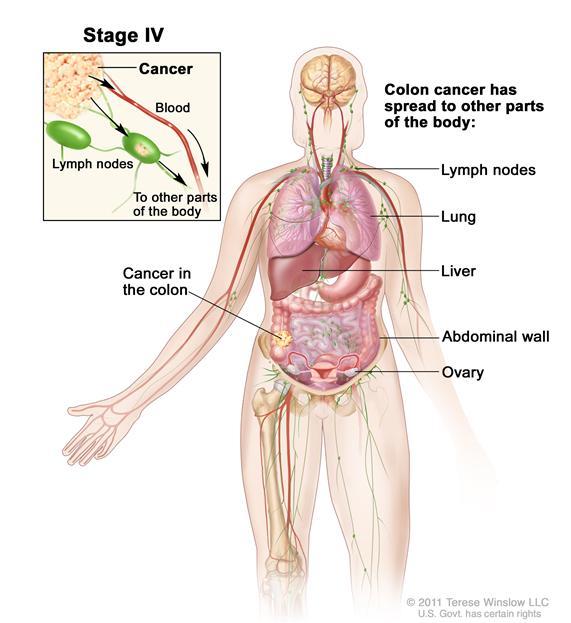 Ung thư đại tràng giai đoạn IV.