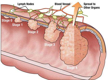 Ung thư đại tràng có tỷ lệ chữa khỏi cao nếu được phát hiện và điều trị sớm.