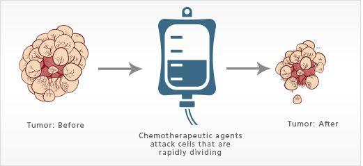Hóa trị có tác dụng làm giảm kích thước khối u và thu nhỏ tổ chức ung thư.