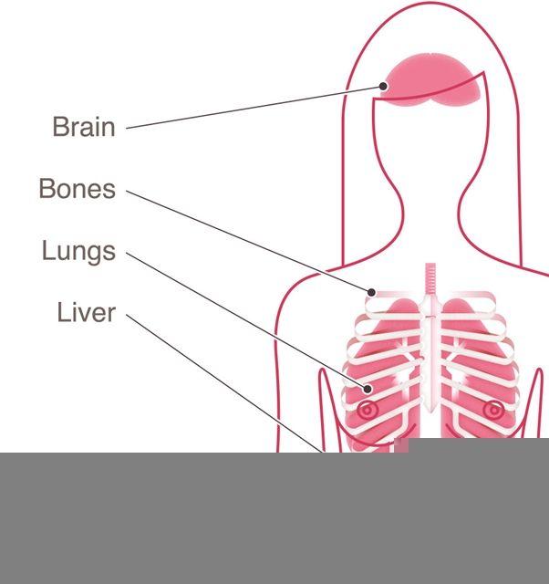 Ung thư vú có thể trở lại tại các cơ quan xa vú.