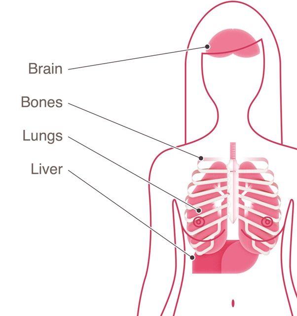 Ung thư vú thường di căn đến phổi, gan, não và xương.