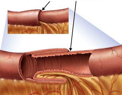 Bệnh nhân có biểu hiện lồng ruột sớm