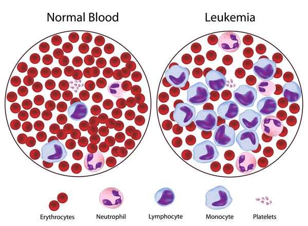 Ung thư bạch cầu hay còn gọi là bệnh ung thư máu hoặc bệnh bạch cầu.