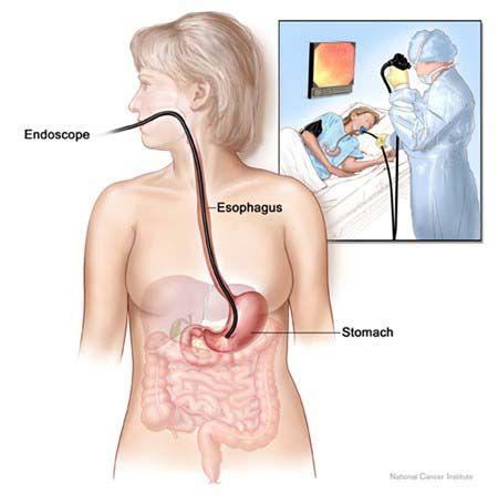 Nội soi dạ dày là phương pháp tầm soát ung thư dạ dày phổ biến.