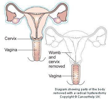 Phẫu thuật cắt tử cung triệt để.