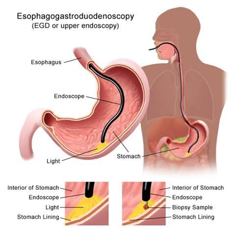 Sinh thiết ung thư dạ dày qua nội soi.