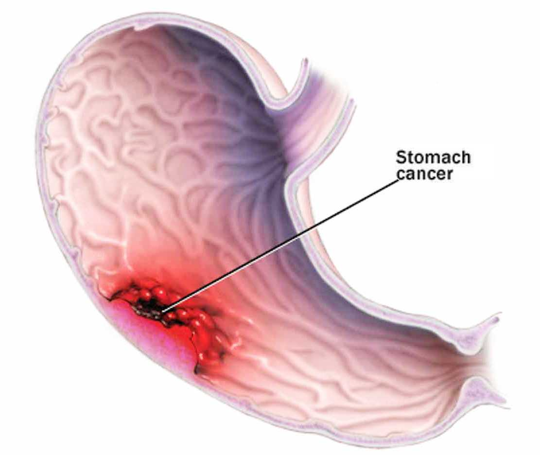stomach_canser1