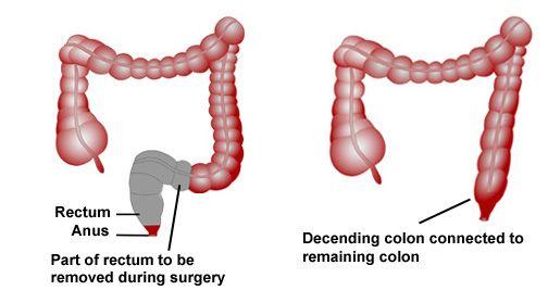 Phẫu thuật cắt bỏ trực tràng.