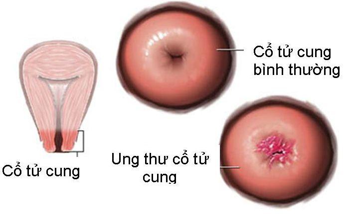 Ung thư cổ tử cung cũng dễ nhận diện sớm