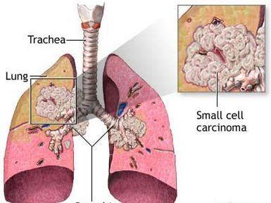 Ung thư phổi tế bào nhỏ.