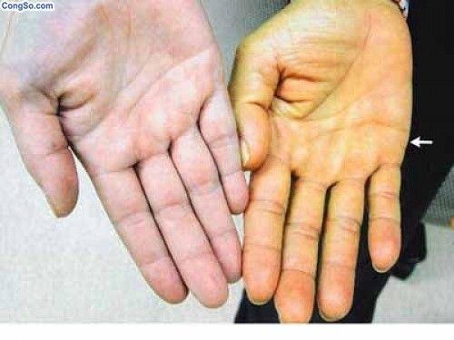 Vàng da là một trong các triệu chứng của ung thư vú di căn gan.