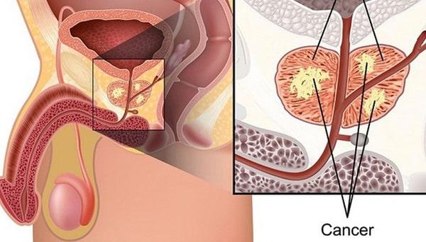 Đậu nành có làm tăng nguy cơ ung thư 2