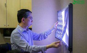 Tìm hiểu về khối u phổi lành tính