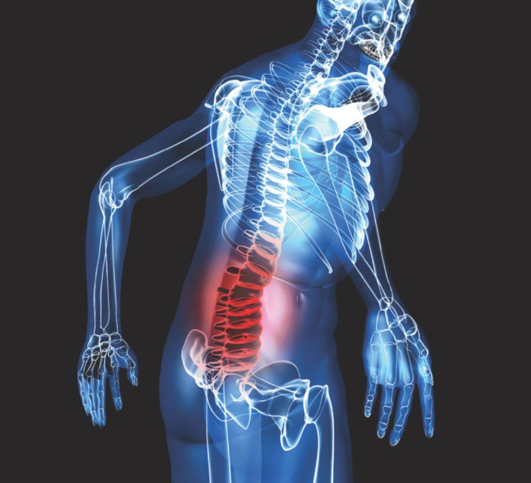 Khoảng 3 trong 4 trường hợp di căn xương bắt nguồn từ khối u ở vú, tuyến tiền liệt, thận và tuyến giáp. Gần 70% những người bị ung thư vú giai đoạn cuối hoặc ung thư tuyến tiền liệt có di căn xương.