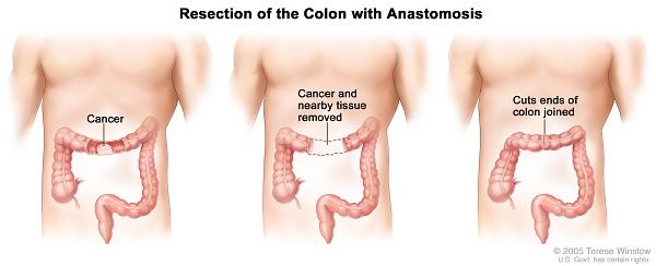 Resection of the Colon with Anastomosis
