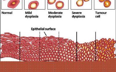 Tế bào tiền ung thư là gì?